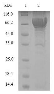 SDS-PAGE- Recombinant protein Human PAH