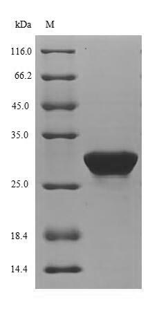 SDS-PAGE- Recombinant protein Mouse Pdk4
