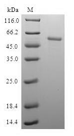 SDS-PAGE- Recombinant protein Human PDXK