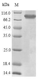 SDS-PAGE- Recombinant protein Human PTPRC