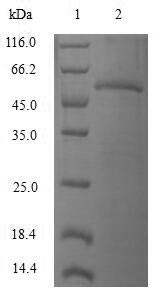 SDS-PAGE- Recombinant protein Human RAB4A