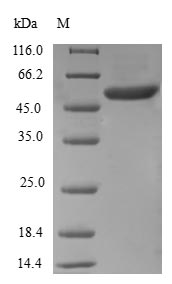 SDS-PAGE- Recombinant protein Human RAB5B