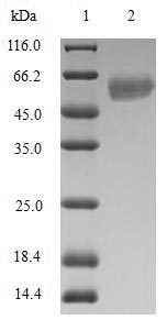 SDS-PAGE- Recombinant protein Human RAD51D