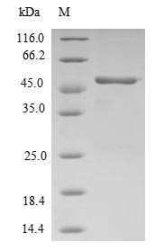 SDS-PAGE- Recombinant protein Human RAP2B