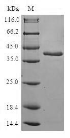 SDS-PAGE- Recombinant protein Human RBP2