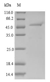 SDS-PAGE- Recombinant protein Human RGS10