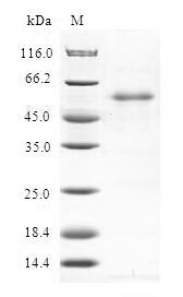 SDS-PAGE- Recombinant protein Human RGS20