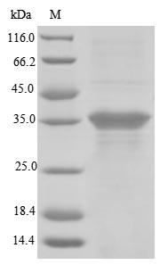 SDS-PAGE - Recombinant Human Blood group RHD