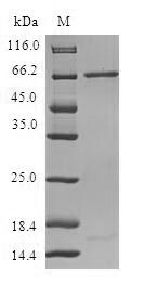 SDS-PAGE- Recombinant protein Human RP2
