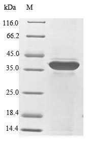 SDS-PAGE- Recombinant protein Human RPSA
