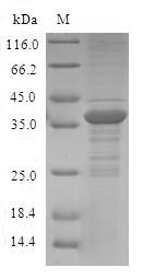 SDS-PAGE- Recombinant protein Human S100A12