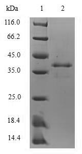 SDS-PAGE- Recombinant protein Mouse S100a8