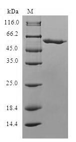 SDS-PAGE- Recombinant protein Human SLC25A20