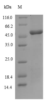 SDS-PAGE- Recombinant protein Human SLC4A1
