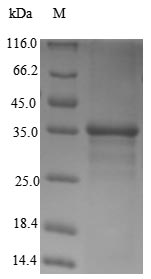 SDS-PAGE- Recombinant protein Human SMARCA4