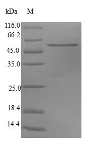 SDS-PAGE- Recombinant protein Human SNAP29