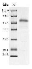 SDS-PAGE- Recombinant protein Human SOCS2