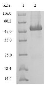 SDS-PAGE- Recombinant protein Human SRI
