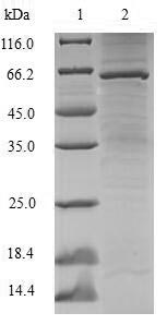 SDS-PAGE- Recombinant protein Human SSB
