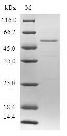 SDS-PAGE- Recombinant protein Human SSX5