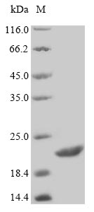 SDS-PAGE- Recombinant protein Human STATH