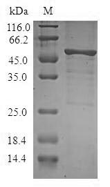SDS-PAGE- Recombinant protein Human STK16