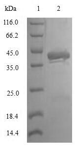 SDS-PAGE- Recombinant protein Human TAC1