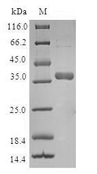 SDS-PAGE- Recombinant protein Human TIMM8A