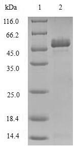 SDS-PAGE- Recombinant protein Human TIRAP