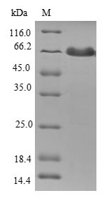 SDS-PAGE- Recombinant protein Human TMOD1