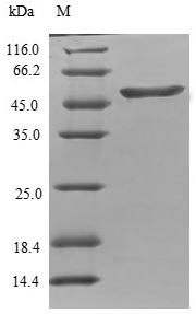 SDS-PAGE- Recombinant protein Human TPPP