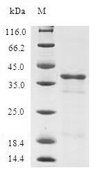 SDS-PAGE- Recombinant protein Human TUSC2