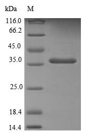 SDS-PAGE- Recombinant protein Human TXNL1