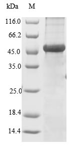 SDS-PAGE- Recombinant protein Human VCAN