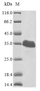 SDS-PAGE- Recombinant protein Human VHL