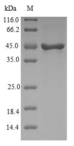 SDS-PAGE- Recombinant protein Human VSNL1
