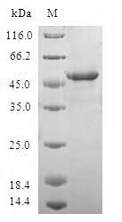 SDS-PAGE- Recombinant protein Human WISP2