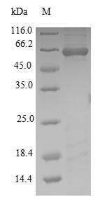 SDS-PAGE - Recombinant Wuchereria bancrofti Putative serine protease inhibitor
