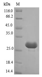 SDS-PAGE- Recombinant protein Nostoc alr2278
