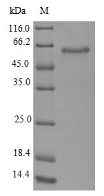 SDS-PAGE- Recombinant protein Escherichia glsA1