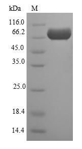 SDS-PAGE- Recombinant protein Escherichia mppA