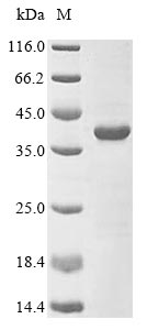 SDS-PAGE- Recombinant protein Staphylococcus sepA