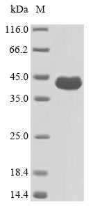 SDS-PAGE- Recombinant protein Pseudomonas oprF