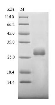 SDS-PAGE- Recombinant protein Bovine S
