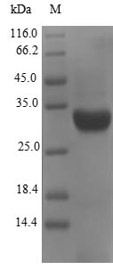 SDS-PAGE- Recombinant protein Escherichia fanC