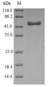 SDS-PAGE- Recombinant protein Haemophilus ompA