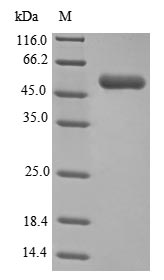 SDS-PAGE- Recombinant protein Clostridium gluD