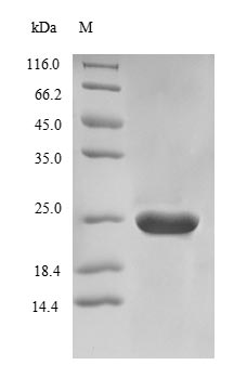 SDS-PAGE- Recombinant protein Saccharomyces PNC1