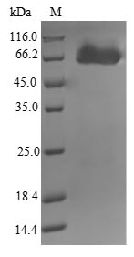 SDS-PAGE- Recombinant protein Mycobacterium amiB2