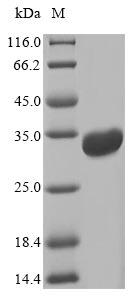 SDS-PAGE- Recombinant protein Escherichia eltA